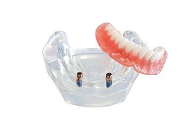 ロケーター付き義歯