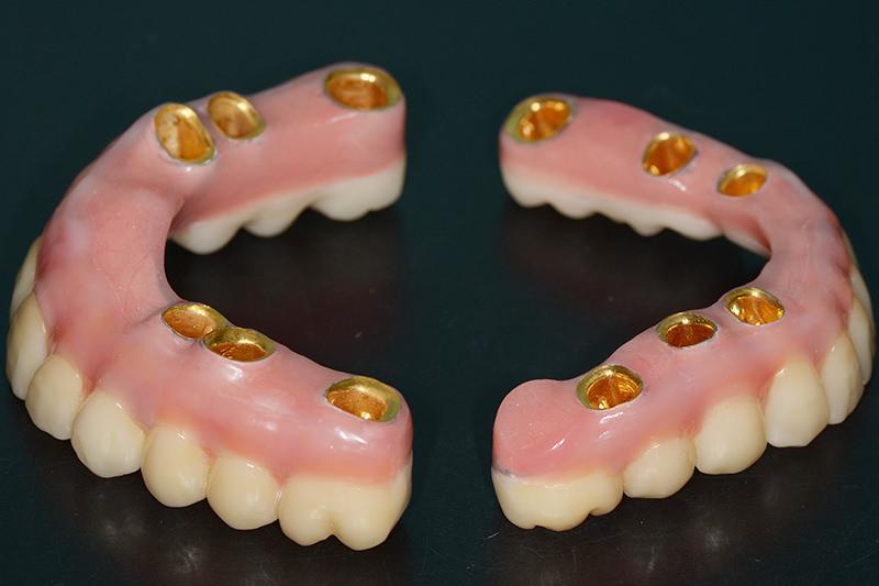 人工歯冠義歯内面に外冠をとりつけます