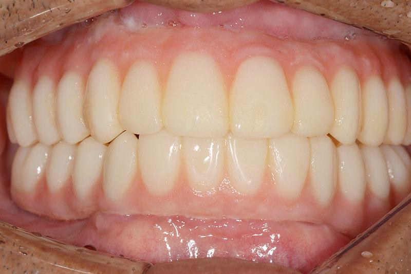 AGCとはインプラントと義歯を固定する方法です